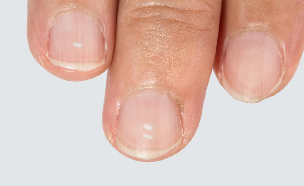 macchie bianche sulle unghie: le cause