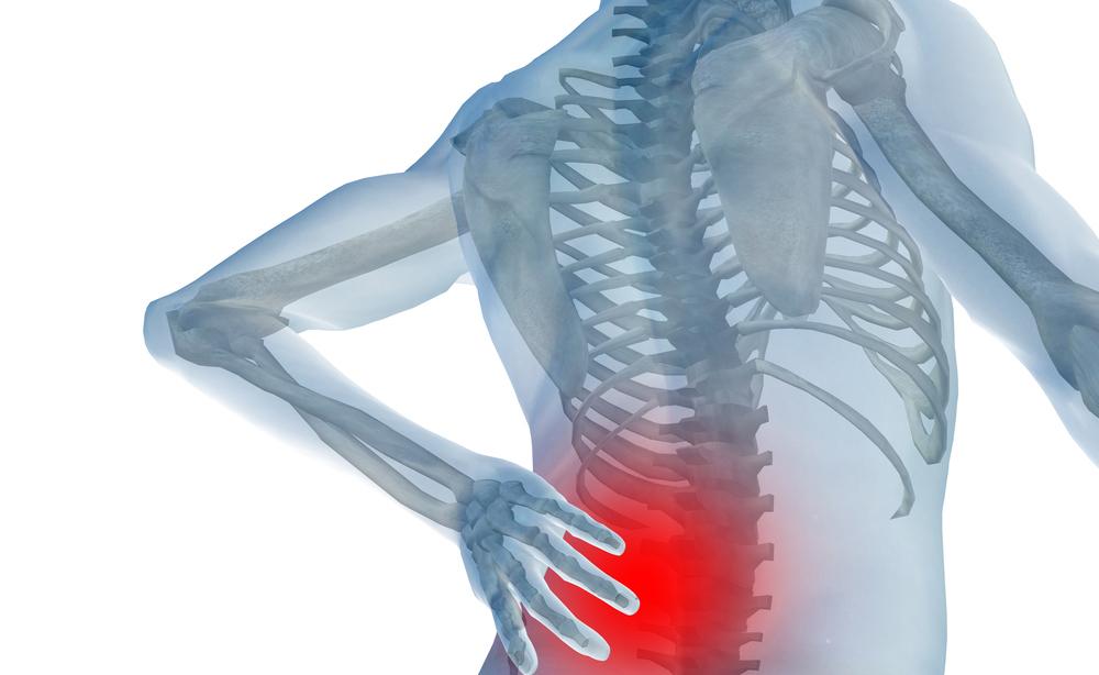 colpo della strega: come trattare il dolore