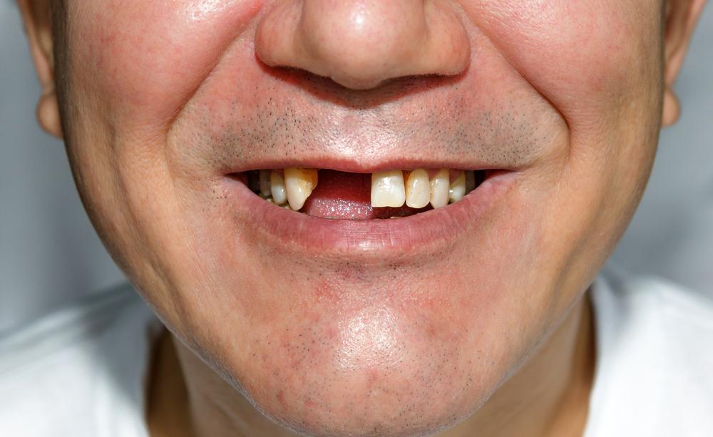piorrea: come curare i denti che cadono