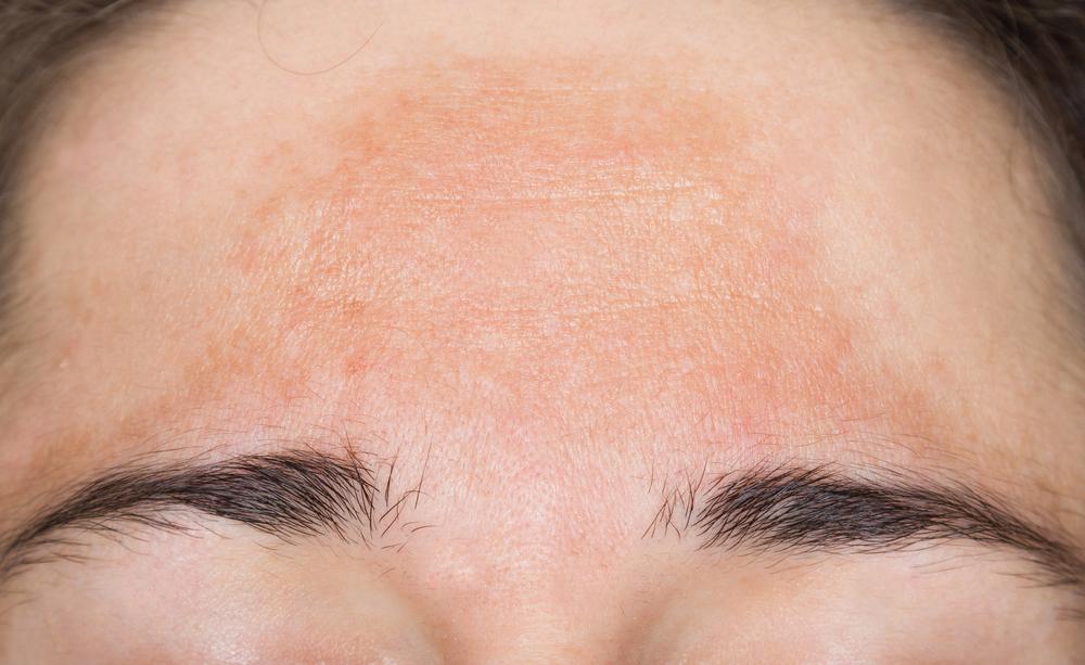 cloasma: le macchie brune sul viso