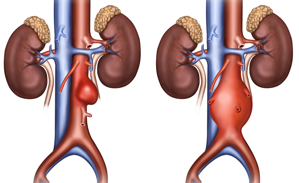 aneurisma aortico: come si presenta