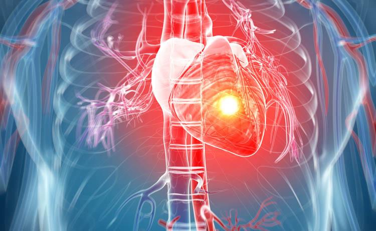 infarto: i sintomi