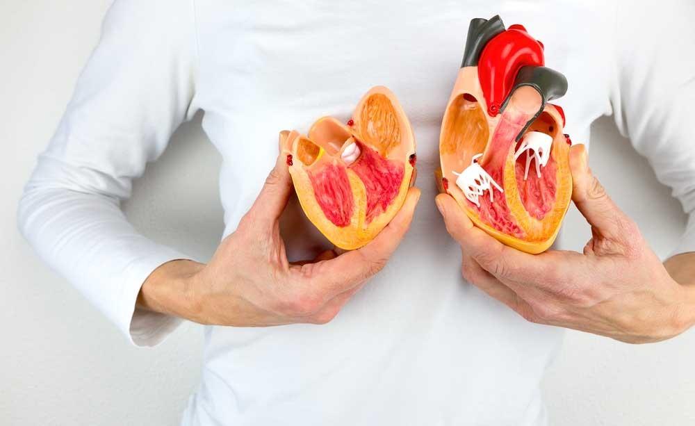 calcio nelle coronarie: i rischi