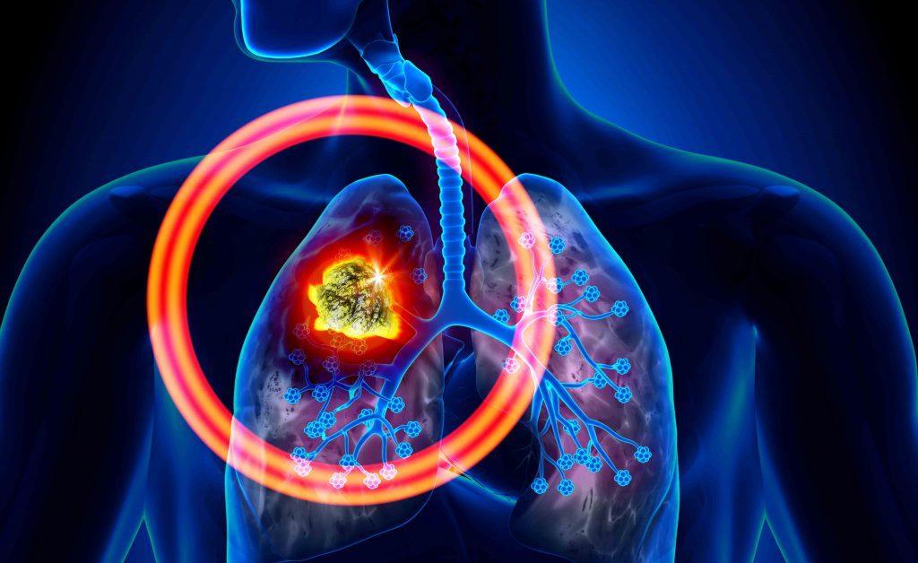 tumore al polmone: i sintomi