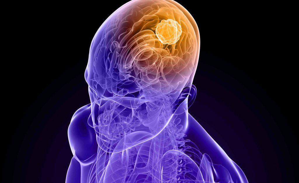 Tumore al Cervello: sintomi, diagnosi e cure