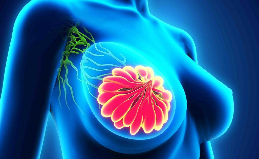 dolore al seno: può essere sintomo di cancro al seno?