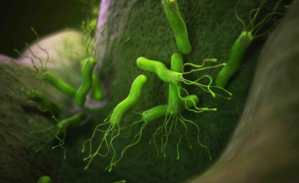 Secondo uno studio, l'Helicobacter pilori potrebbe essere un fattore di rischio per il cancro allo stomaco
