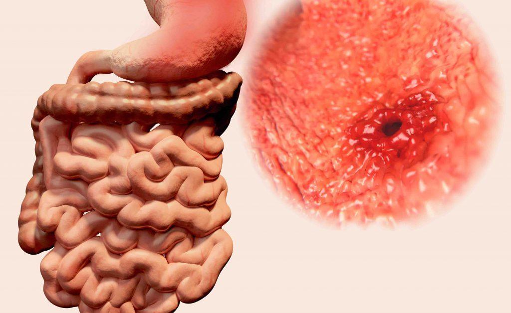 ulcera gastrica: come si fa a riconoscerla, valutando il bruciore o dolore nella zona addominale