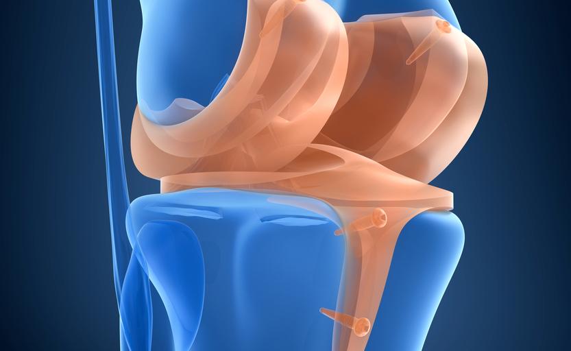 La lesione del menisco