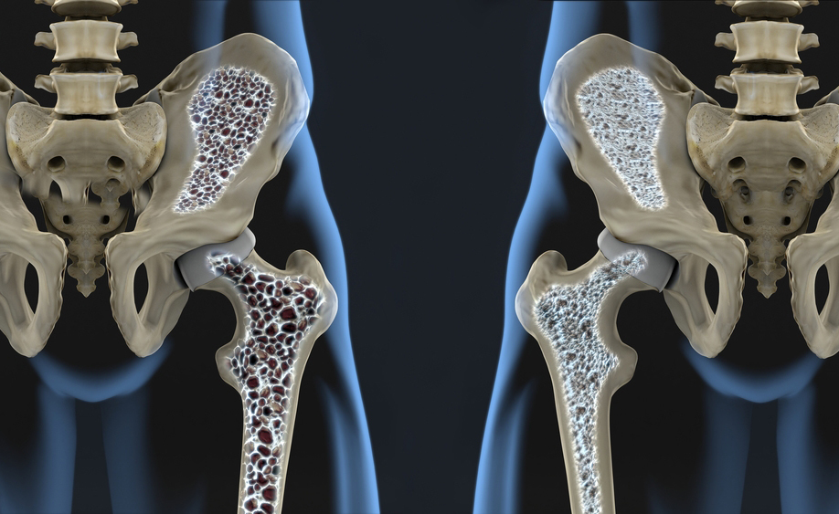 osteoporosi: le cause