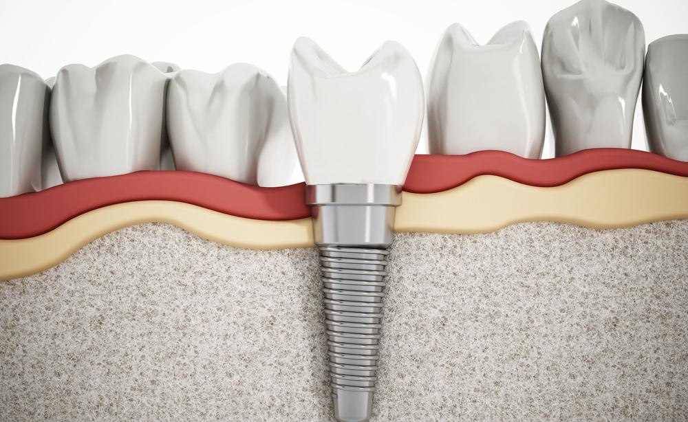 impianto dentale: i rischi
