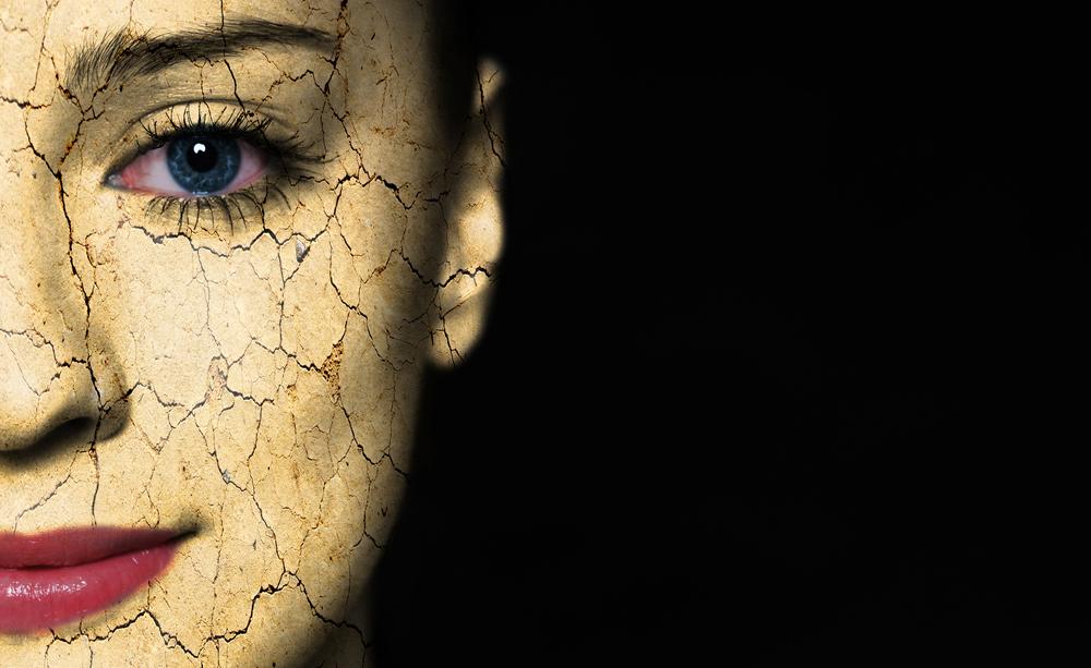 pelle secca: i rimedi