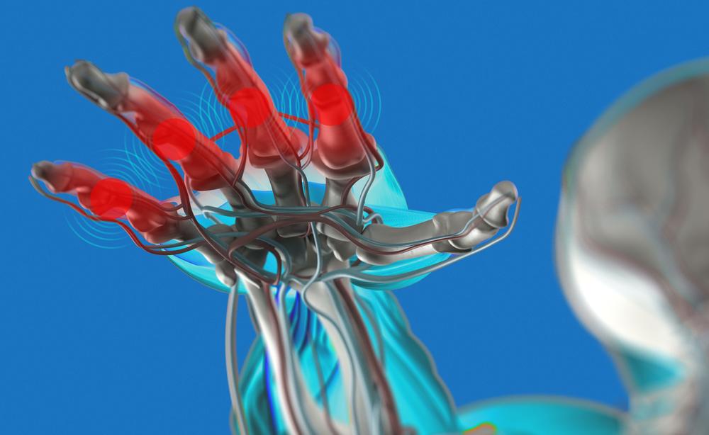 artrite: come trattarla con la crioterapia