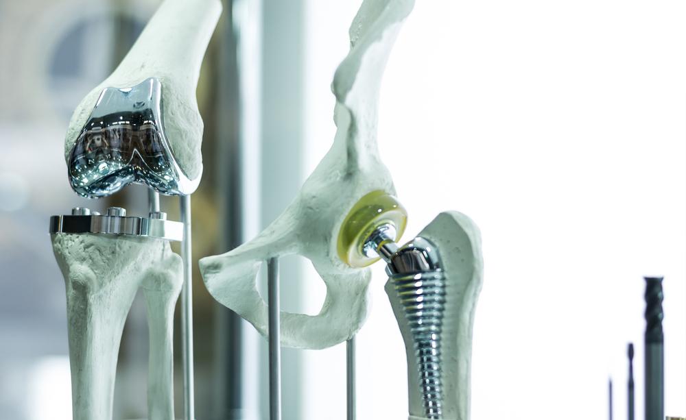protesi: le nuove frontiere in campo protesico