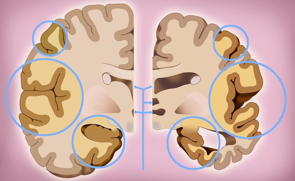 morbo di alzheimer: la cura