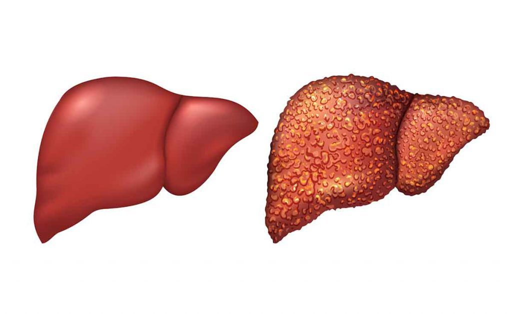 fegato: i sintomi di un disturbo