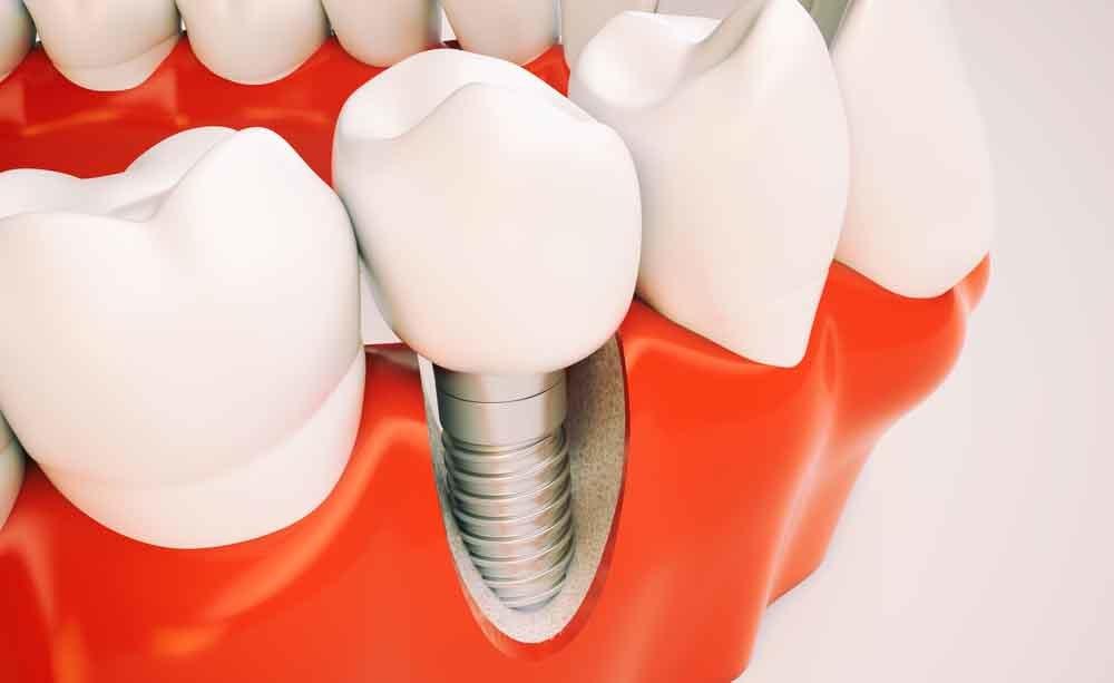 impianto dentale: cosa prevede l'intervento di implantologia
