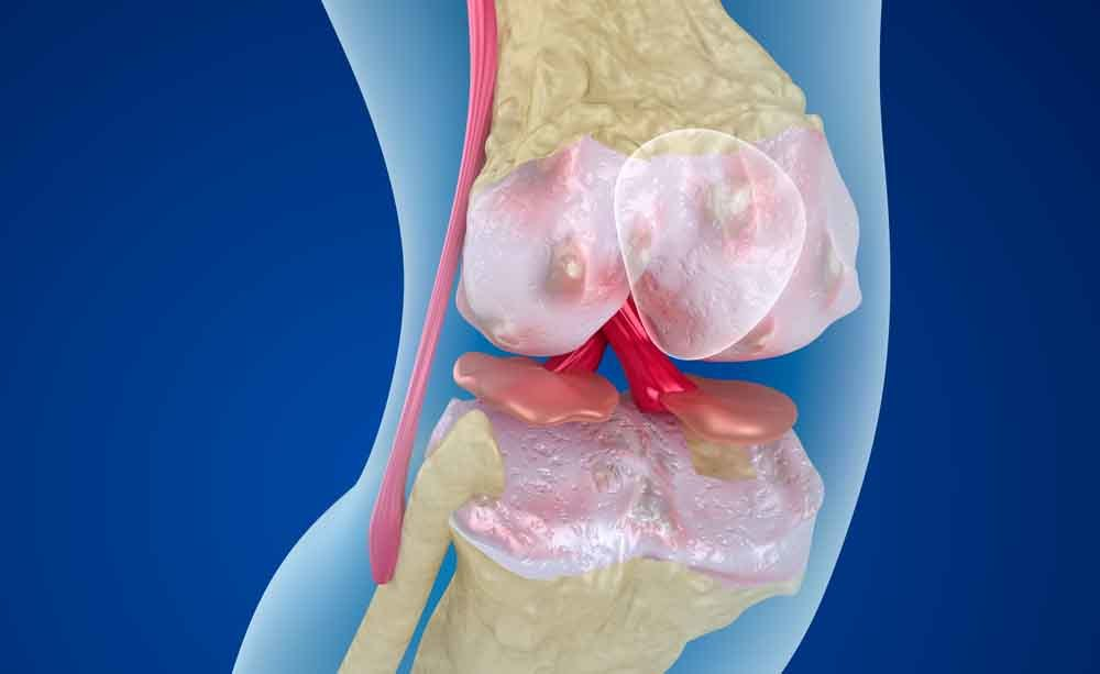 pseudoartrosi: quali sono i sintomi