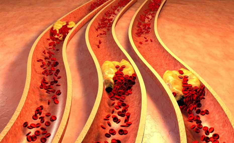 colesterolo alto: gli effetti sul cuore