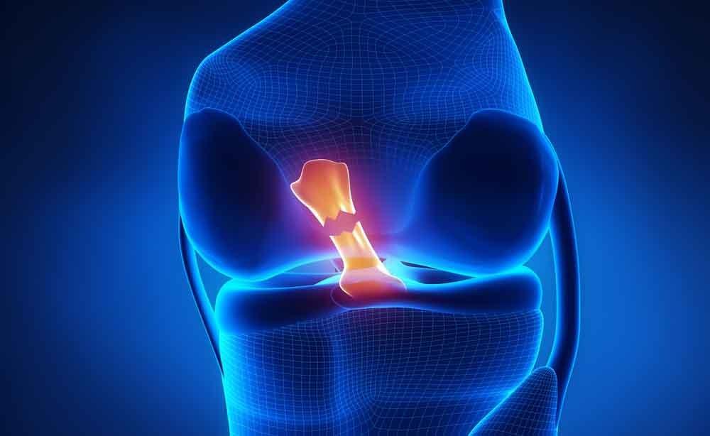 lesione del menisco: la fisioterapia per recuperare