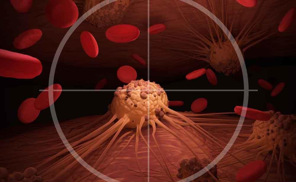 linfoma: la diagnosi con i raggi X