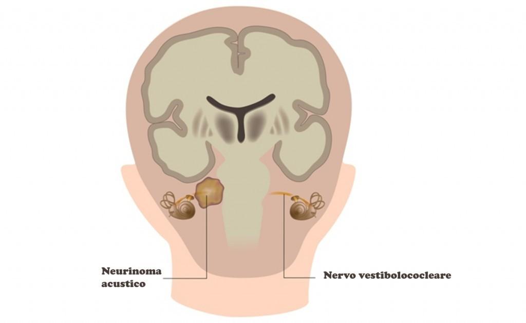 neurinoma acustico: un tumore benigno che causa sordità
