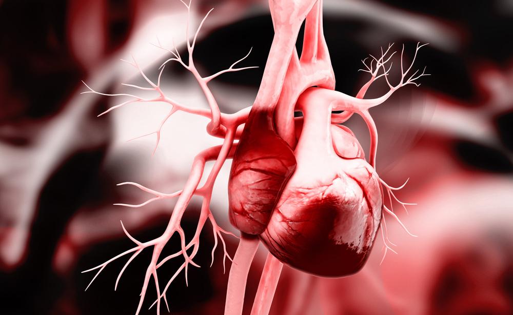 Infarto: come riconoscerne i sintomi della malattia cardiaca