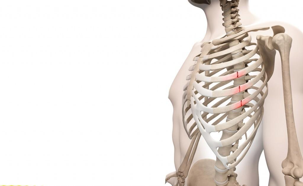 frattura delle costole: gli esercizi di fisioterapia