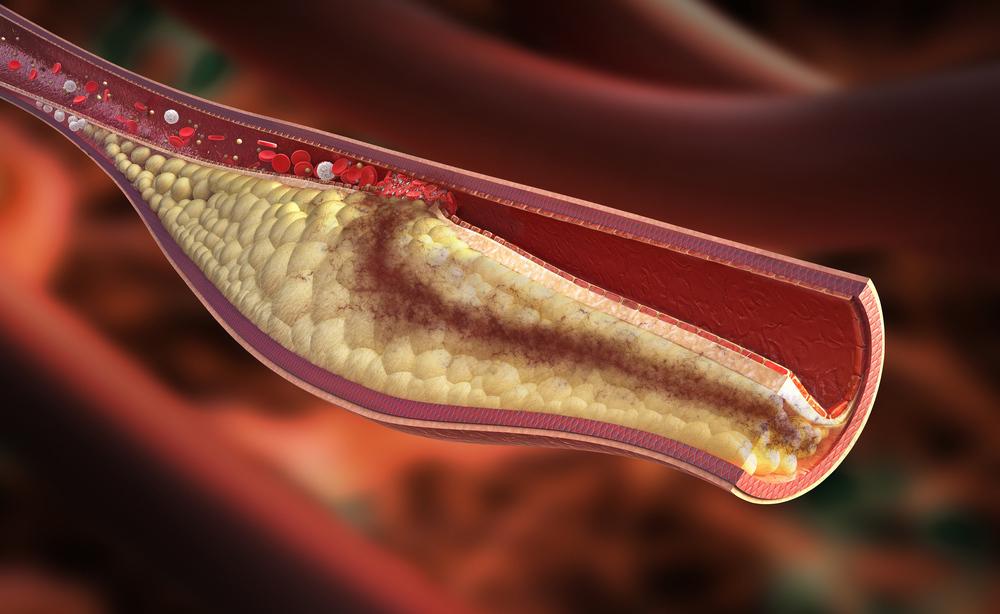 colesterolo alto: cosa fare per abbassarlo e stare bene