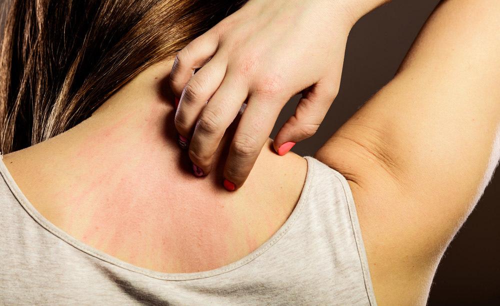 allergie insospettabili: ecco quali sono