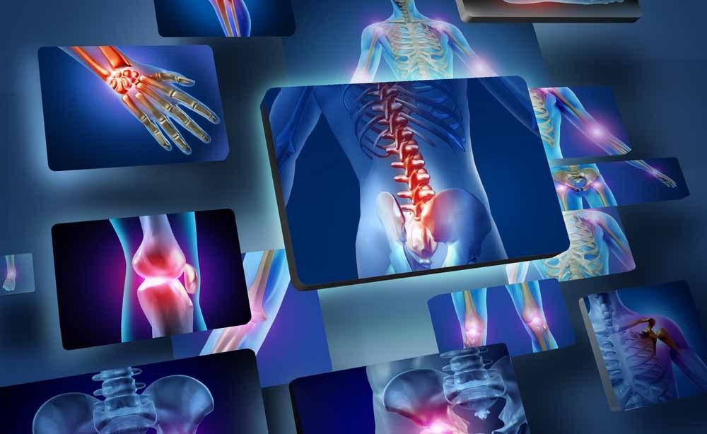 crioterapia: gli effetti sull'artrosi