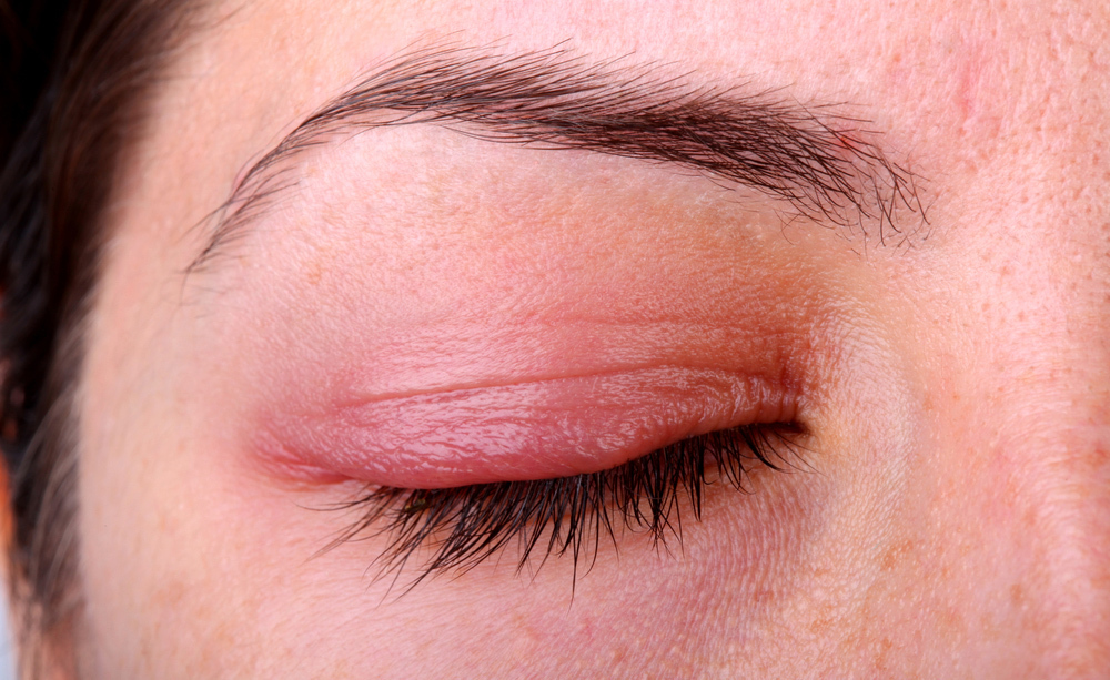 dermatite alle palpebre: le cause dell'infiammazione all'occhio