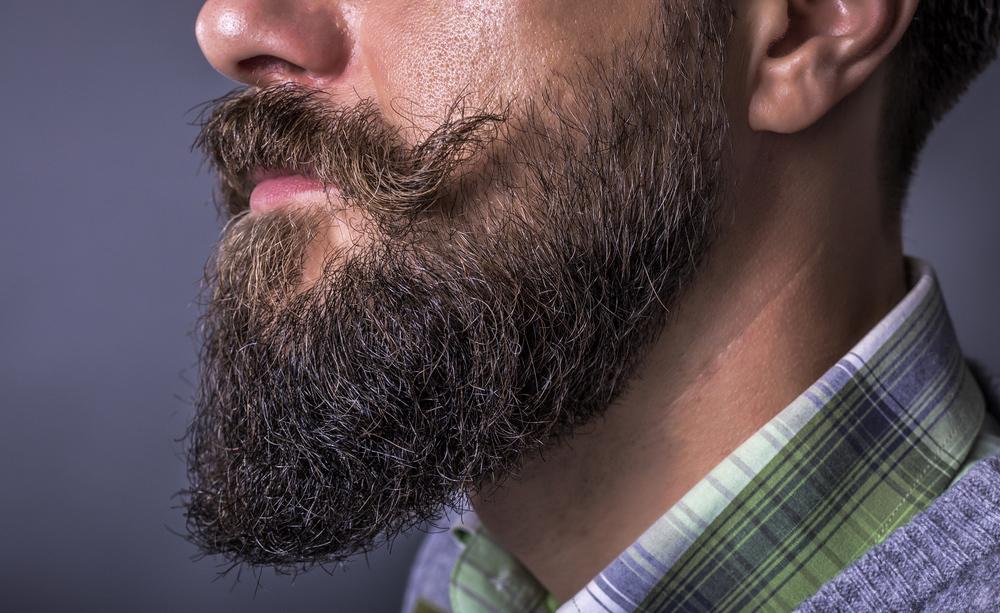 barba: l'alopecia