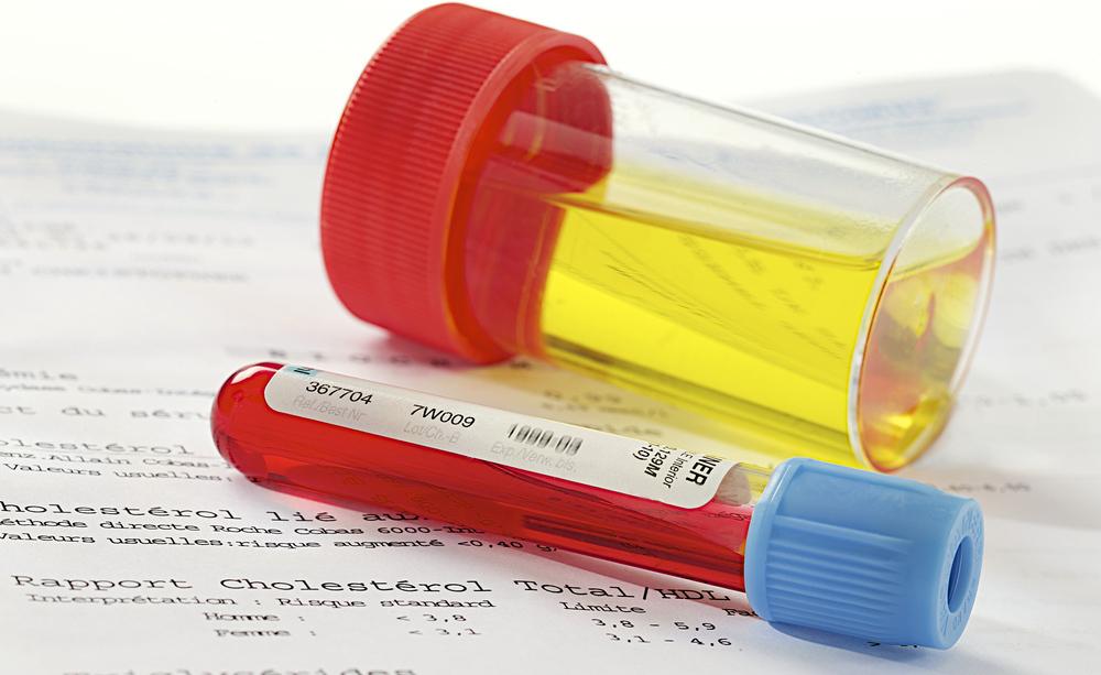 infezioni urinarie: le cause