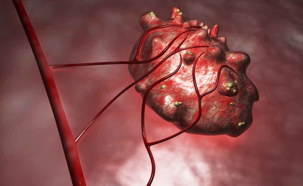 Cisti ovarica e tumore dell'ovaio