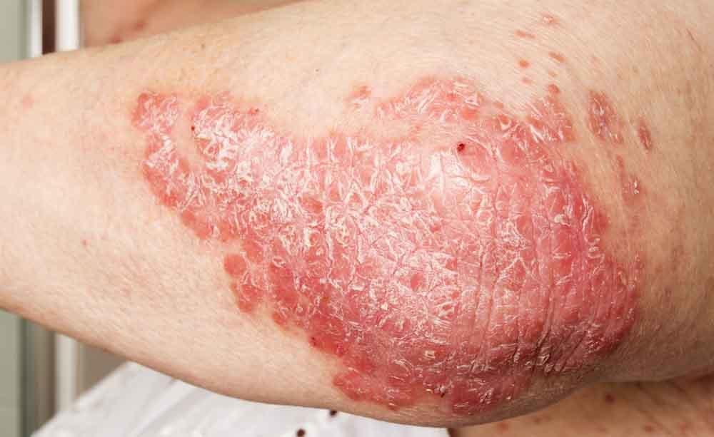 psoriasi: malattia della pelle