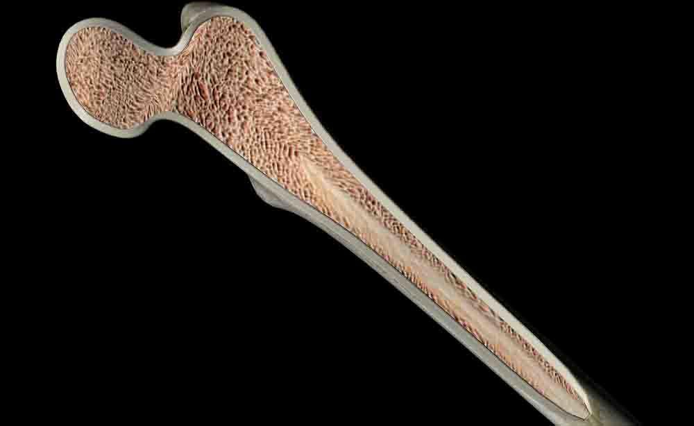 Impianti sintetici per le ossa