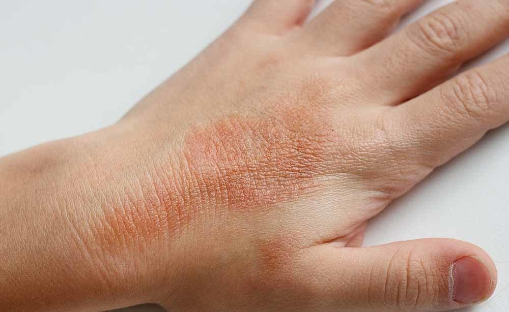 eczema: come si cura