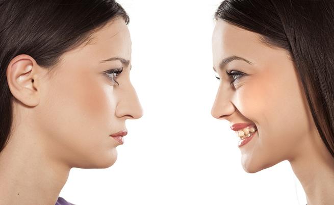 bipolarismo: come si cura