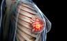 Cancro al seno: le percentuali di sopravvivenza