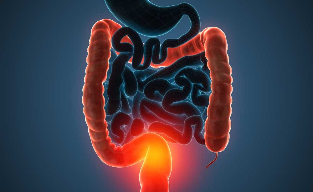 Morbo di Crohn: lo studio