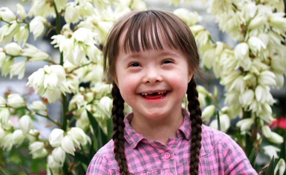Sindrome di Down: vita media durata
