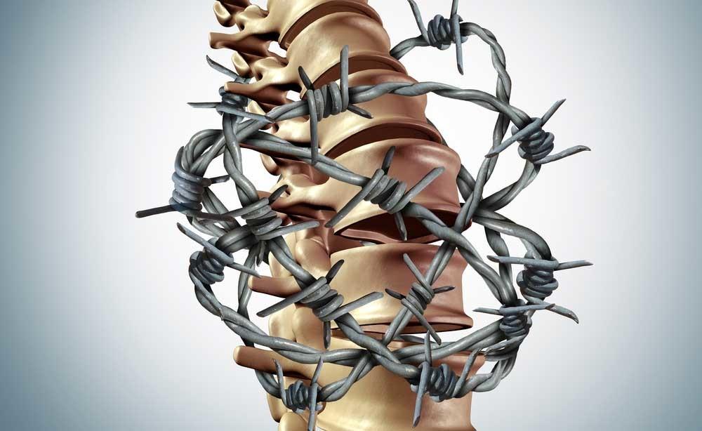 Fibromialgia: la cura con la crioterapia