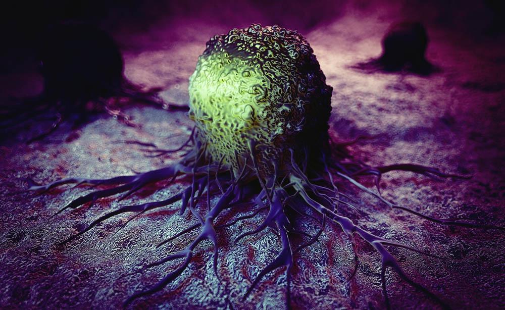 Cancro: i tipi di tumore più comuni negli uomini e nelle donne