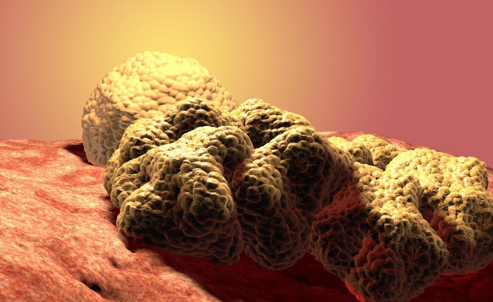 Tumore al seno: i test genetici