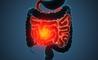 Morbo di Crohn e difficoltà di concentrazione: il legame