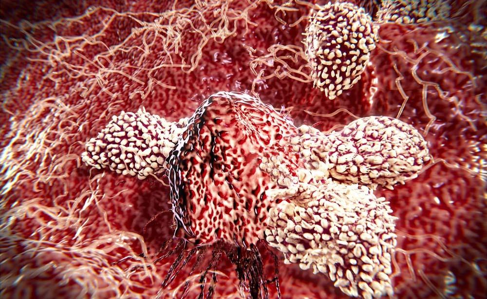 Scoperto modo per bloccare le cellule tumorali