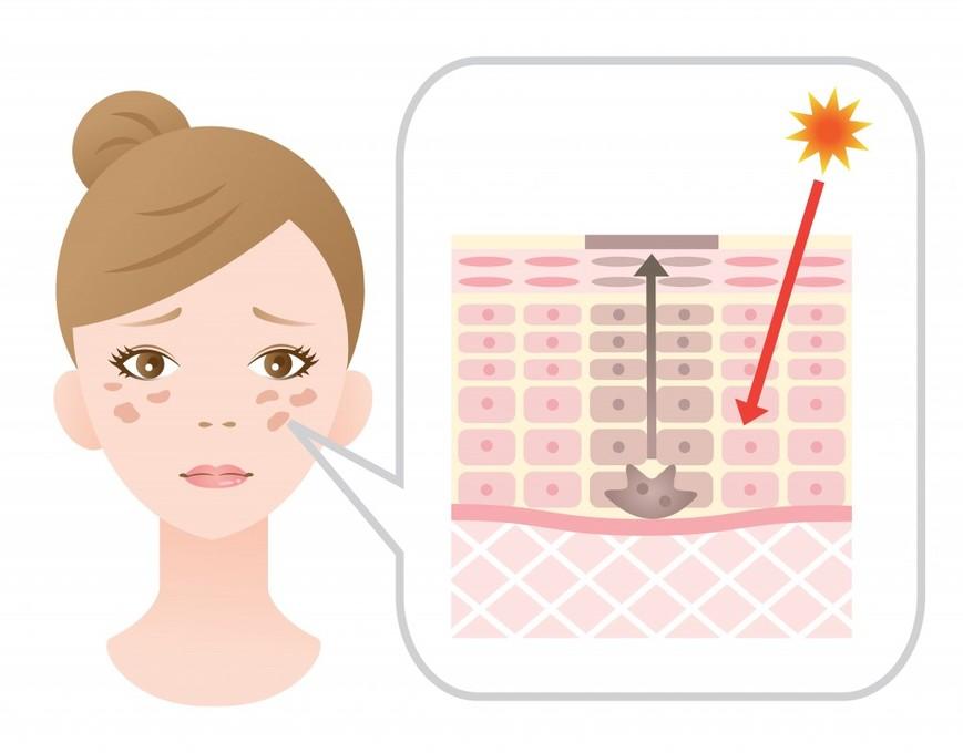 Macchie solari del viso