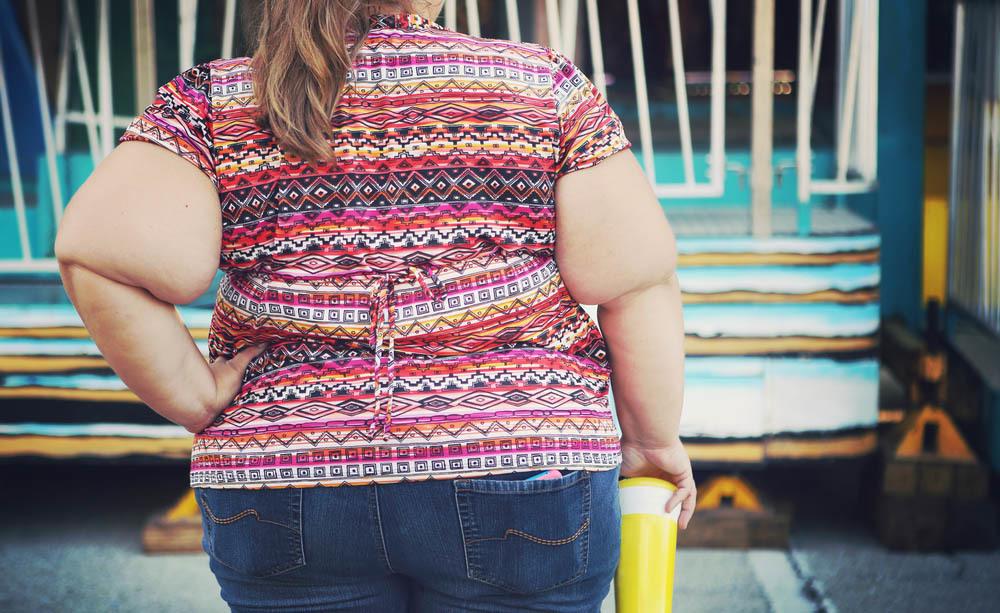 Obesità e salute