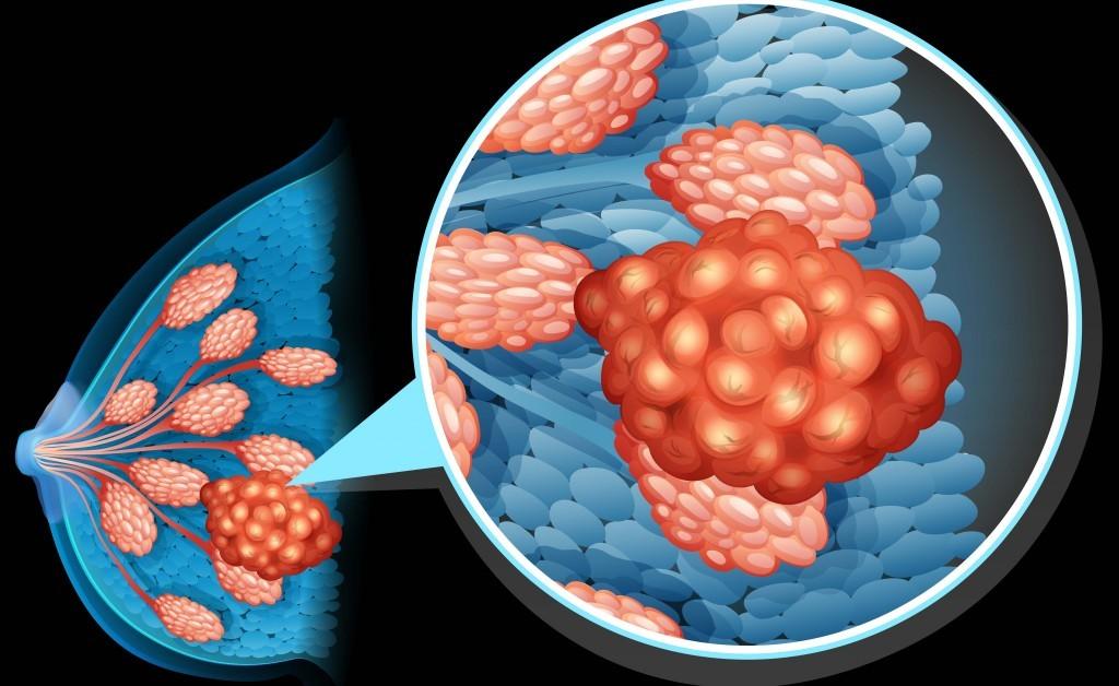 Tumore al seno: la diagnosi